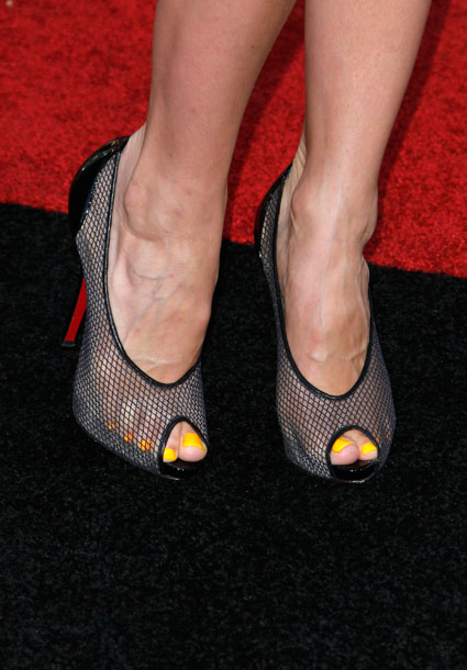 Yellow Toenails And Diabetes: Trend Or Tragic: Annalynne's McCord's Neon Yellow Nails